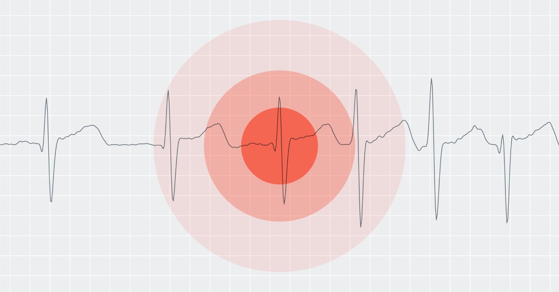 screening-target-8bit